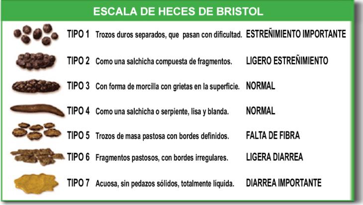 Constipacion_Escala_de_Bristol estreñimiento
